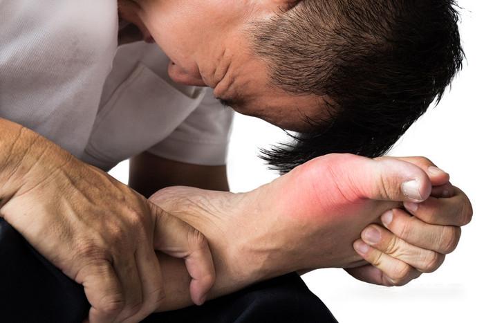尿酸高导致痛风